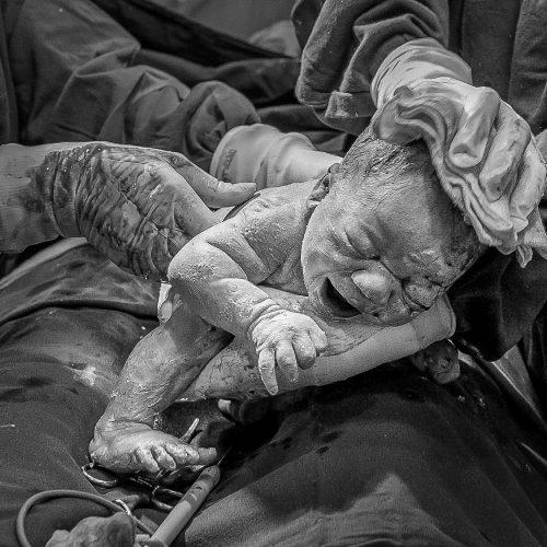 fotografo-fotografia-de-parto-cruzeiro-guaratingueta-lorena-resende-renan-odorizi